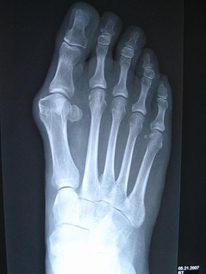 x-ray bunion